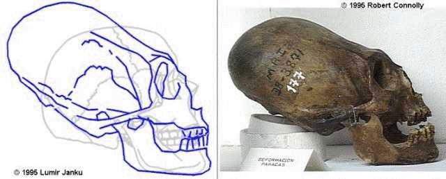 elongated skull